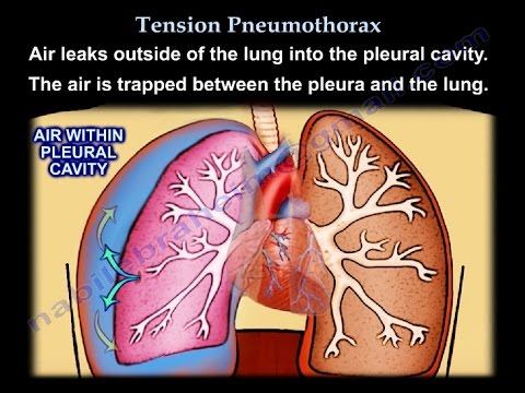 Tension Pneumothorax - Everything You Need...