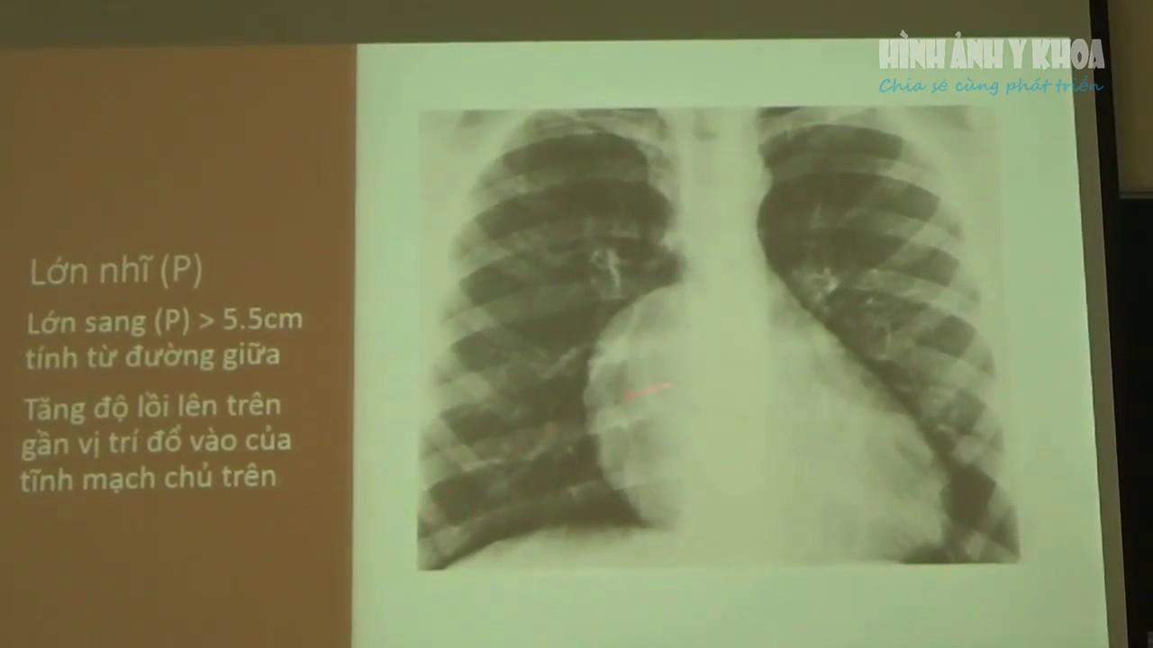X quang trong bệnh lý tim mạch, BS Hồ Quốc Cường