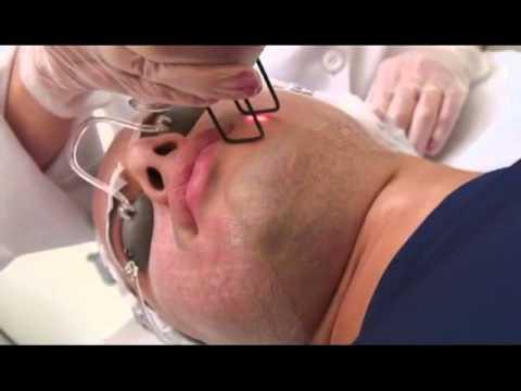 Cicatrizes De Acne Laser Fracionado Co2 Youtube