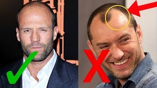 WORST Mistakes You Make When Dealing With Hair Loss