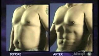 Liposuction Thailand Vaser and Vaser Hi Def via Liposelection
