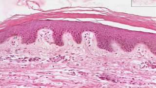 Shotgun Histology Thin Skin