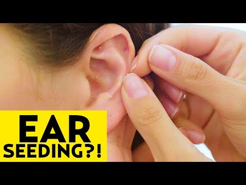 Better than Acupuncture? We Tried Ear Seeding! | The SASS with Susan and Sharzad