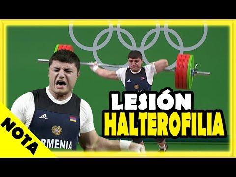 Escalofriante Lesión en halterofilia | Olimpiadas Rio de Janeiro 2016