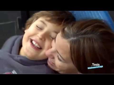 Síndrome del Cromosoma X Frágil