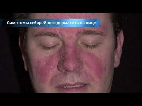 Себорейный дерматит на лице - лечение, причины, симптомы и профилактика