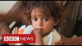 """Yemen facing world's """"worst famine in decades""""  - BBC News"""