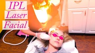 My IPL Photofacial Laser Experience & Results
