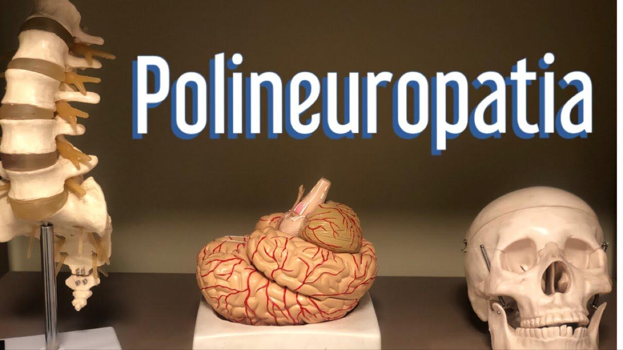 medicament pentru polineuropatie cu osteochondroză