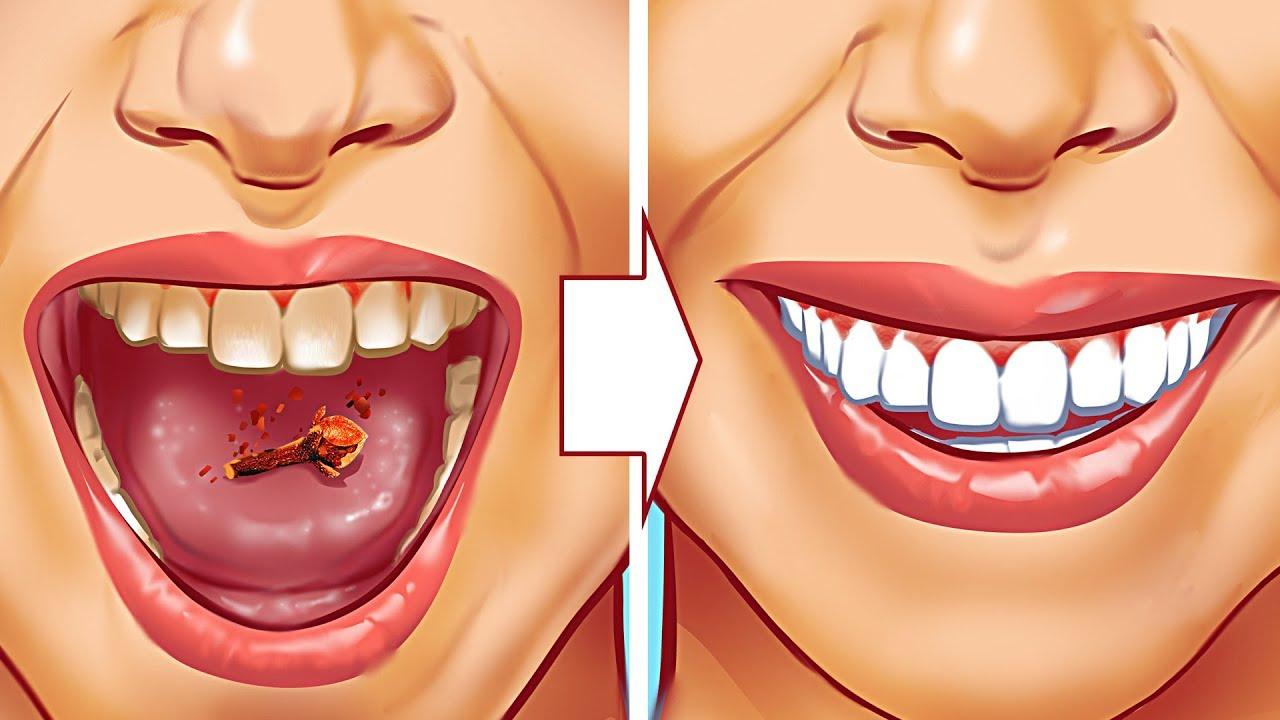10 натурални начина да отстраните зъбния камък!