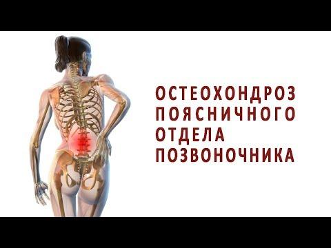 Что нужно знать об остеохондрозе поясничного отдела