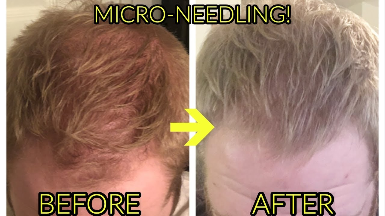 TREAT HAIR LOSS WITH MICRONEEDLING! BEFORE/AFTER PHOTOS