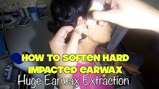 How to remove hard impacted earwax- Huge earwax extraction