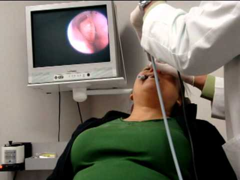 FinESS Sinus Treatment - Physician Instructional Video