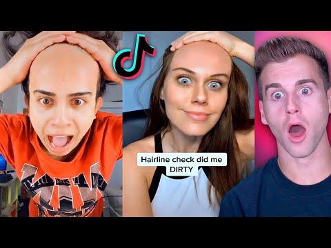 Really BAD Hairline Check 2..(Tik Tok Compilation)