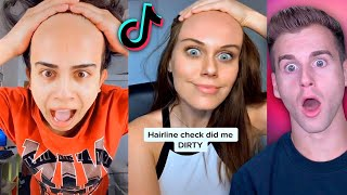 Really BAD Hairline Check 2..(Tik Tok Compilation)