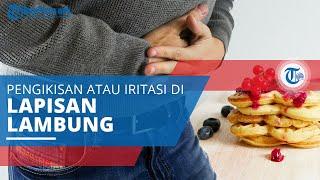 Gastritis merupakan penyakit pada lambung yang terjadi akibat peradangan dinding lambung. Gastritis .