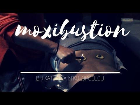 Moxibustion techniques