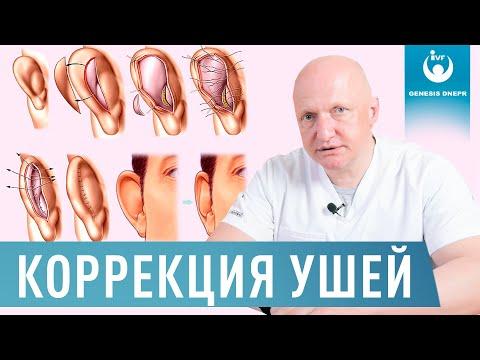 Беспокоит лопоухость или оттопыренные уши? Лазерная коррекция ушей - отопластика | Хирург Щевцов