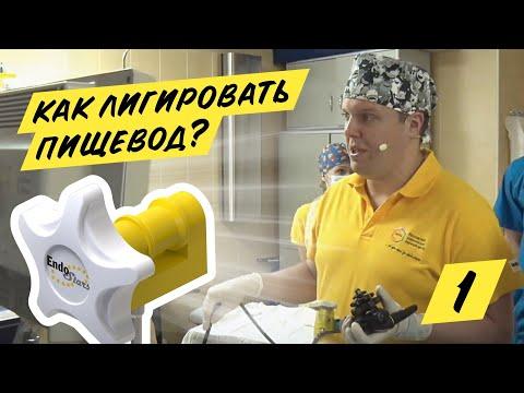 Эндоскопическое лигирование ВРВП, клинический случай №1, МКНЦ 23.01.19