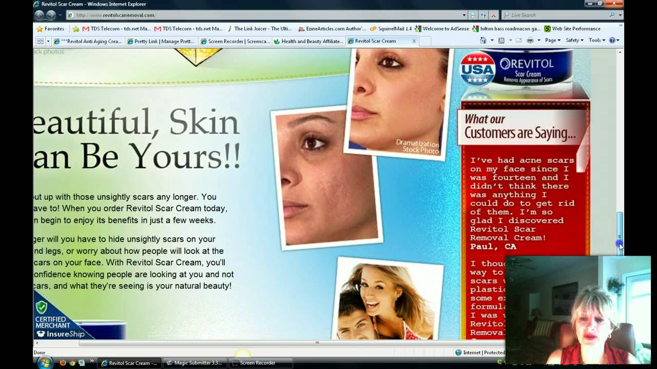 Revitol Acne Scar Removal Tired Of Those Scars On Your Face