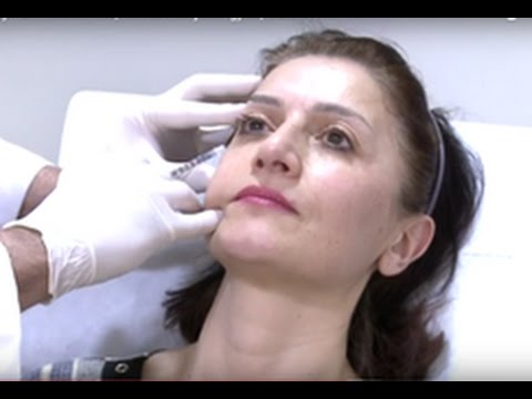 About Rhinoplasty + Botox In Yerevan, Armenia - Hayk Avagyan | Arzni Aesthetica