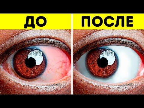 Глаза болят от компьютера капли