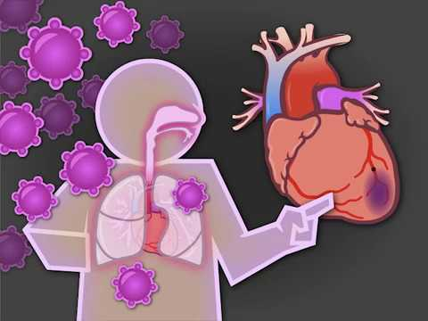 Influenza and Acute Cardiovascular Events
