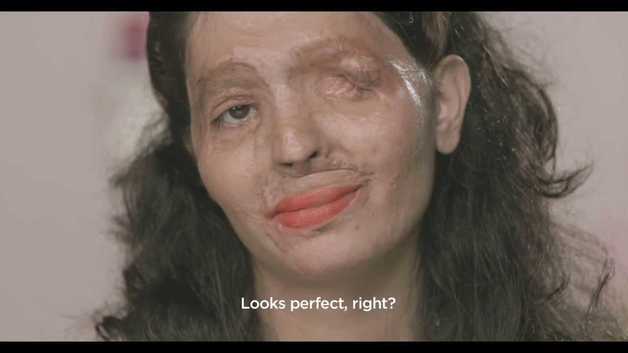 Campagna Shock contro le donne deturpate dall'acido | India