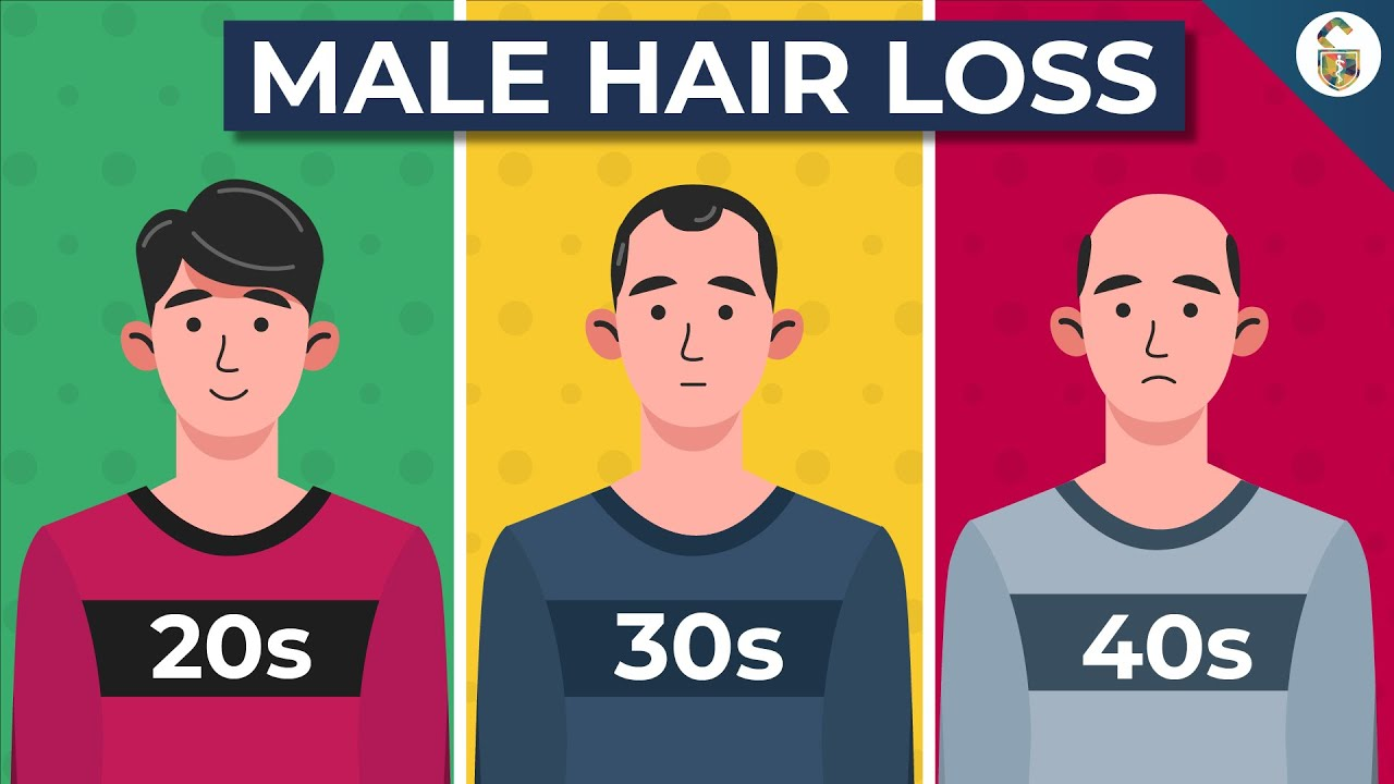 Going Bald? This Could Be Why...