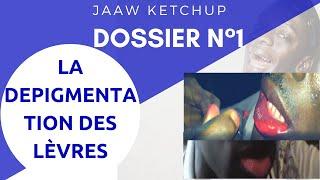 Jaaw ketchup : dossier n1: la dépigmentation des lèvres