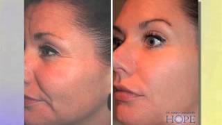 Anti-Aging Skin Rejuvenation Techniques Thumbnail