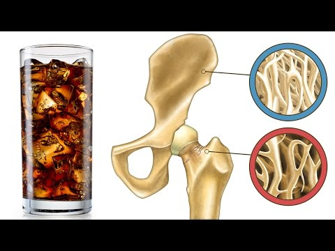 This Drink Destroys Your Bones From The Inside But Most People Still Drink It!