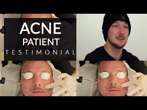 Acne Scar Treatment with Accutane & Laser | Accutane Before and After | Dr. Jason Emer MD