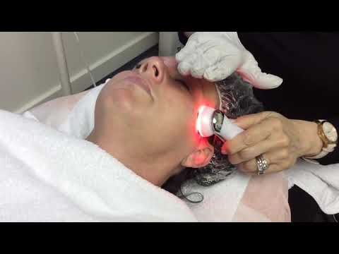 5-in-1-rf-ems-electroporation-led-light-therapy-for-acne-skin-tightening-anti-aging-device