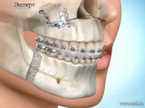 картинка красивых зубов улыбка