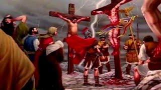 Crucifixion (Medical Account)