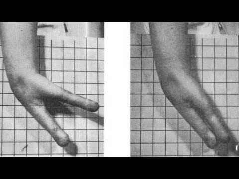 Krukenberg Procedure | Stories of the World