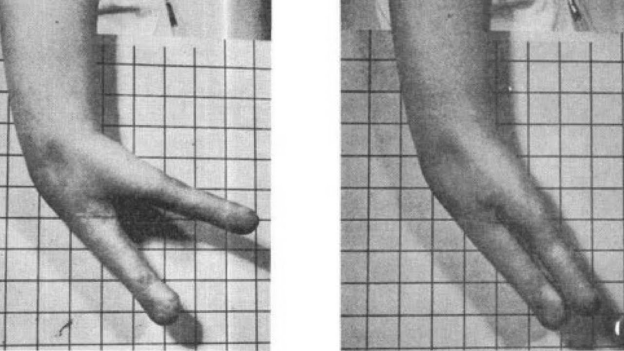 Krukenberg procedure