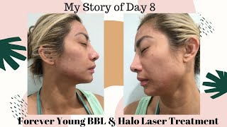 Aloha and welcome to the tiki girl channel. i am doing a vlog of my 8th day experience using combination sciton bbl forever young halo laser t...
