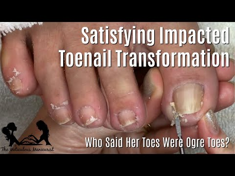 👣 Beginners How to Clean Toenails at Home Pedicure Tutorial 👣