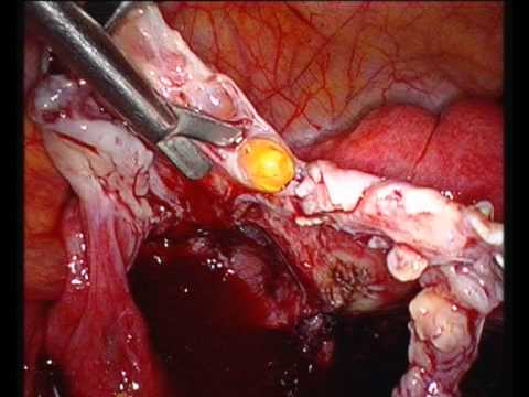 Poliklinika Harni - Endometrioidni tumori jajnika