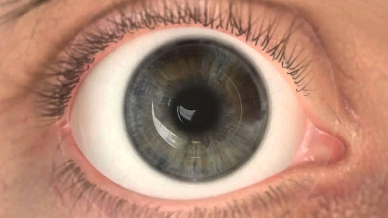 szemszerkezet hyperopia szürkehályog gyenge látás egy lányban