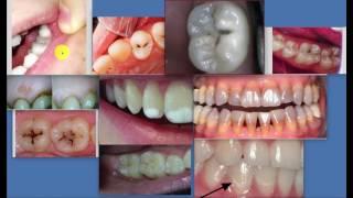 dunkler Fleck am Zahn - Karies?