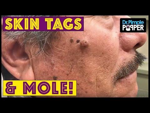 hqdefault - I Have A Pimple On Mole