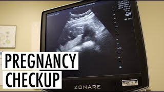 PREGNANCY CHECKUP    WE GOT GREAT NEWS!!!