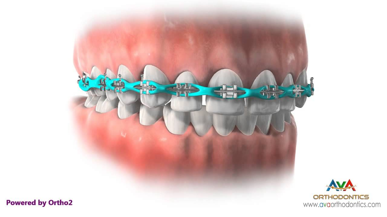Space Closure by Power Chain - Orthodontic Treatment - YouTube