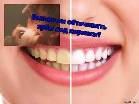 Как обтачивают зубы под коронки видео