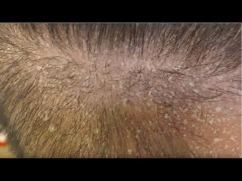 Round or fine tooth combs or brushes are generally used to remove psoriasis scales 2