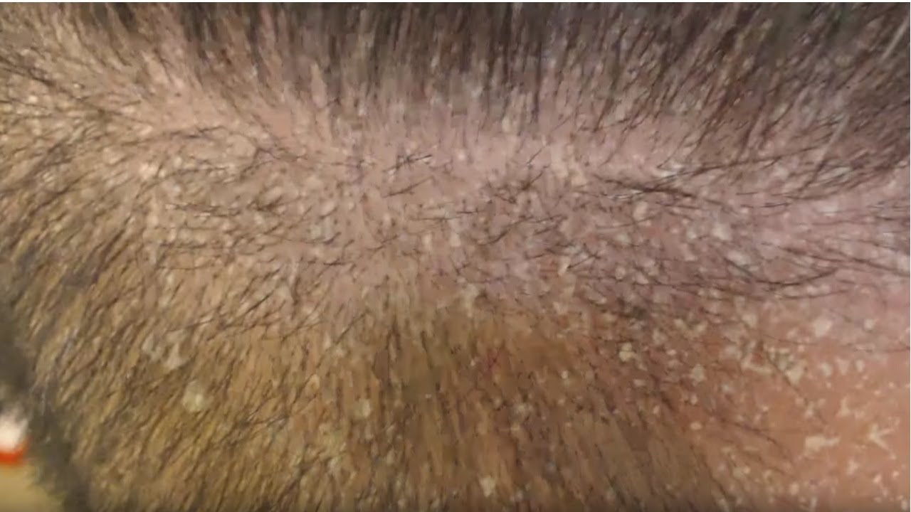 Scalp Psoriasis + NEW Metal Comb + Dandruff! - YouTube